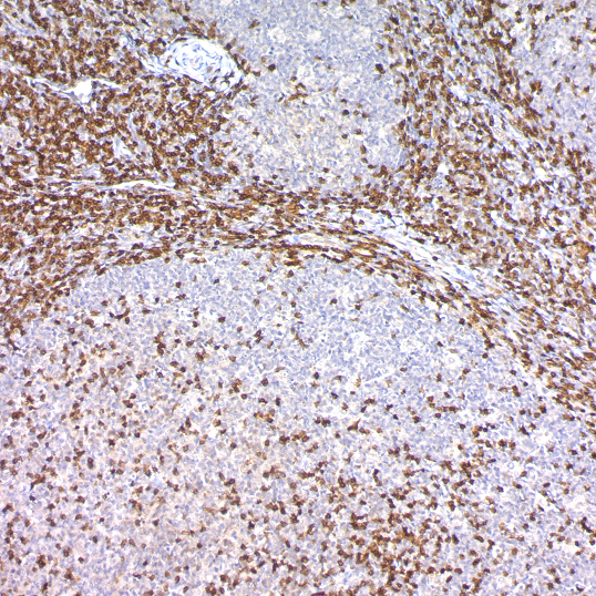 CD3, T-Cell; Polyclonal