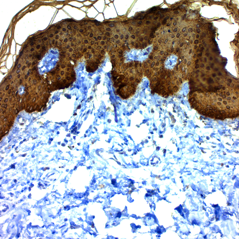 Cytokeratin, Multi (Basic); Clone AE-3 (Ready-To-Use)
