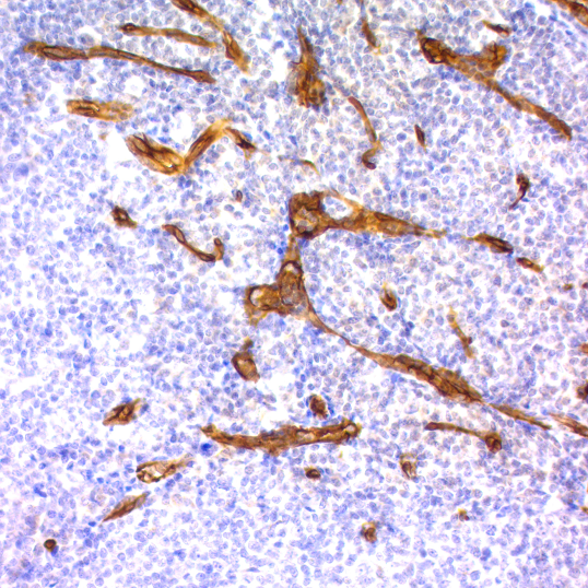 CD34, Endothelial Cell; Clone QBEnd/10 (Concentrate)