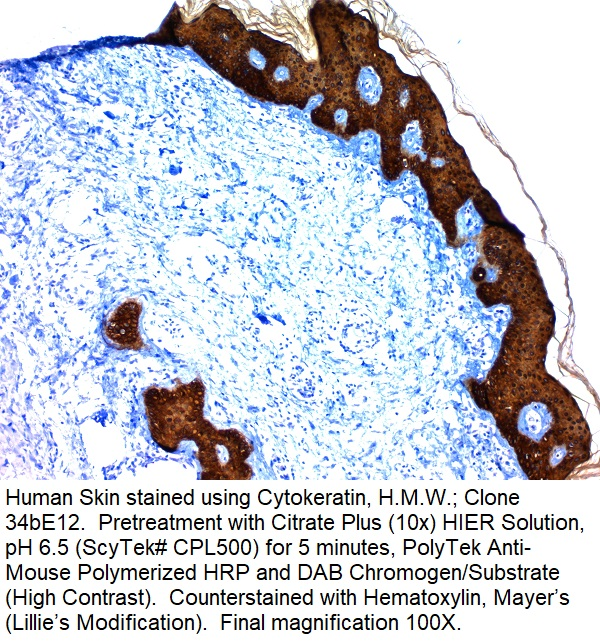 Cytokeratin, High Molecular Weight; Clone 34bE12 (Ready-To-Use)