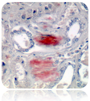 Amyloid Stain Kit (Congo Red)