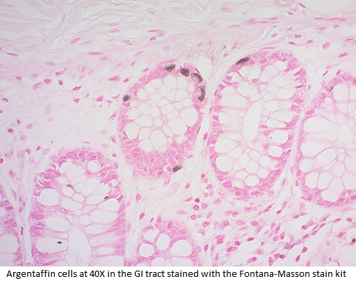 Fontana-Masson Stain Kit (For Argentaffin Cells and Melanin)