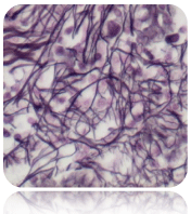 Reticulum Stain Kit  (Modified Gomori's)