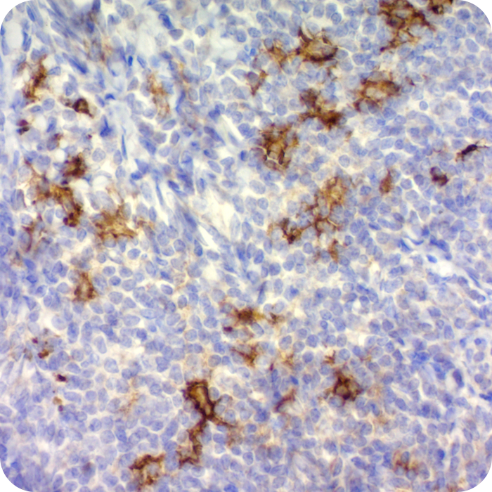 CD1a / HTA1 (Mature Langerhans Cells Marker); Clone O10 (Concentrate)