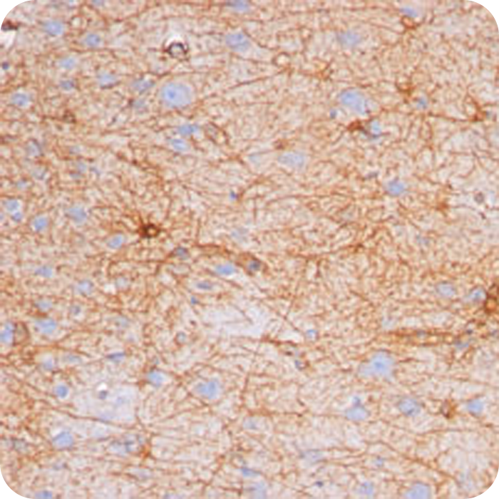 GFAP (Astrocyte & Neural Stem Cell Marker); Clone GA-5 (Concentrate)