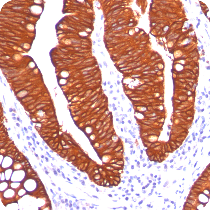 Cytokeratin 19 (KRT19) (Pancreatic Stem Cell Marker); Clone A53-B/A2.26 (Ks19.1) (Concentrate)