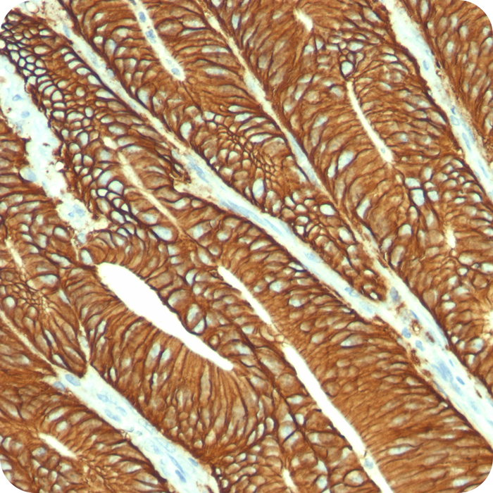 Ep-CAM / CD326 (Epithelial Marker); Clone VU-1D9 (Concentrate)