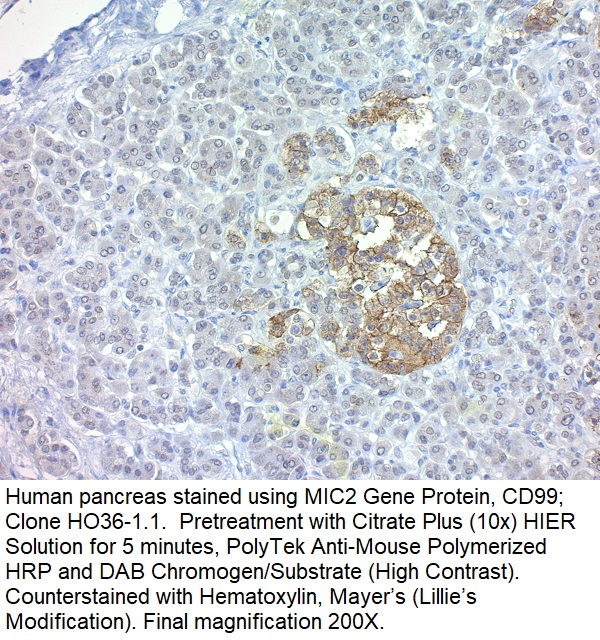 CD99 / MIC2 (Ewing's Sarcoma Marker); Clone HO36-1.1 (Concentrate)
