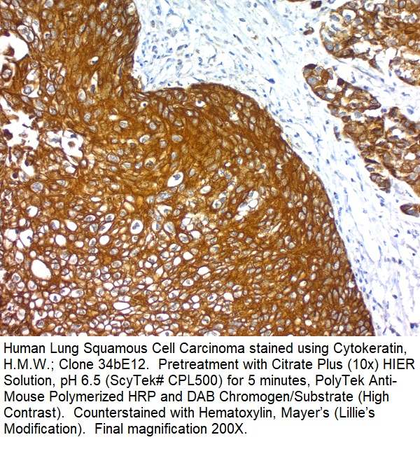 Cytokeratin, Basic (Type II or HMW) (Epithelial Marker); Clone 34BE12 (Concentrate)
