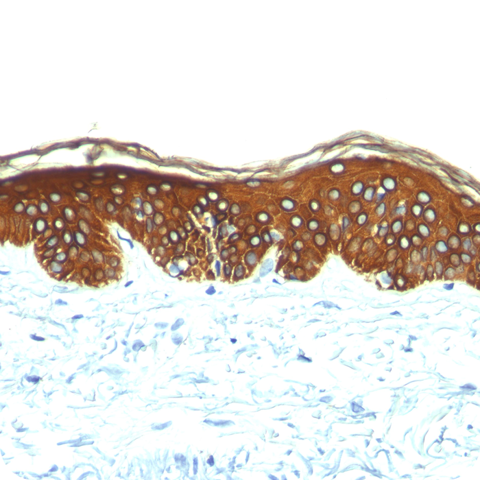 Cytokeratin, Basic (Type II or HMW) (Epithelial Marker); Clone AE-3 (Concentrate)