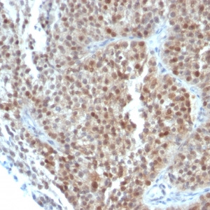 p21WAF1 (Tumor Suppressor Protein); Clone CIP1/823 & DCS-60.2 (Concentrate)