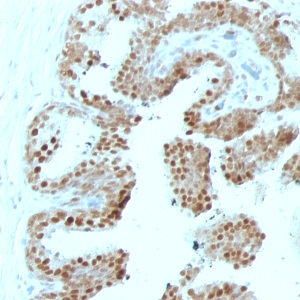 p57Kip2 (Mitotic Inhibitor/Suppressor Protein); Clone SPM308 (Concentrate)
