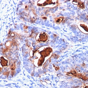 Carcinoembryonic Antigen (CEA) / CD66; Clone C66/1260 (Concentrate)