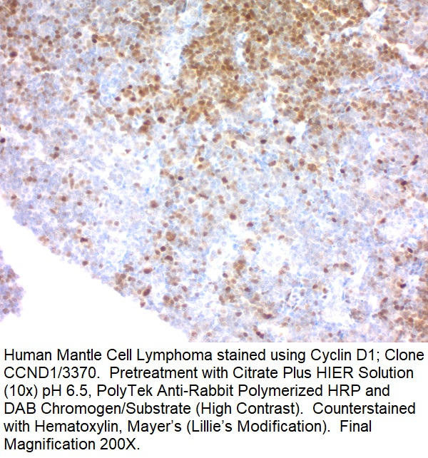 Cyclin D1 (G1-Cyclin & Mantle Cell Lymphoma Marker); Clone CCND1/3370 (Concentrate)
