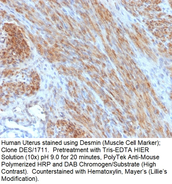 Desmin (Muscle Cell Marker); Clone DES/1711 (Concentrate)