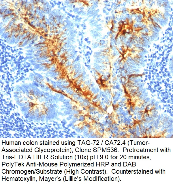TAG-72 / CA72.4 (Tumor-Associated Glycoprotein); Clone SPM536 (Concentrate)