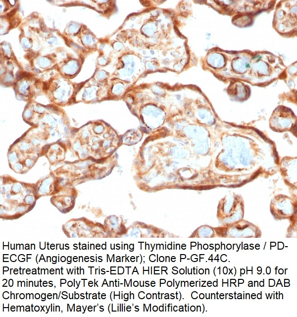 Thymidine Phosphorylase / PD-ECGF (Angiogenesis Marker); Clone P-GF.44C (Concentrate)