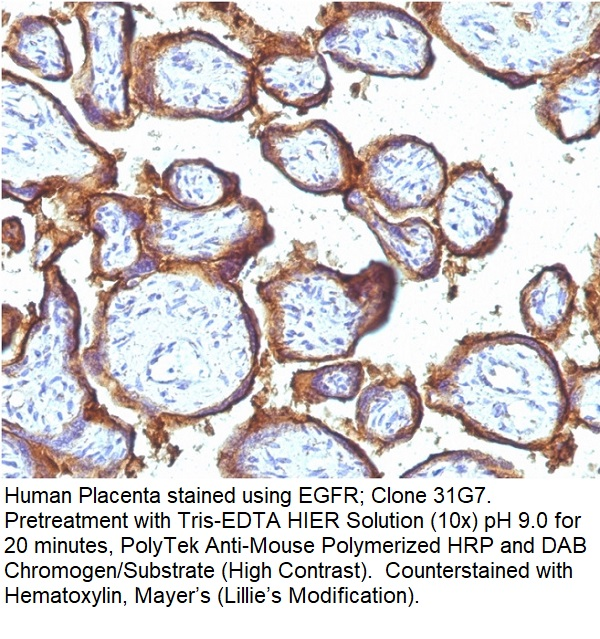 EGFR (Epidermal Growth Factor Receptor); Clone 31G7 (Concentrate)