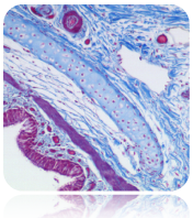 Trichrome Stain (Blue)