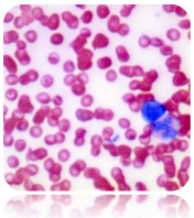 Wright-Giemsa Stain Kit